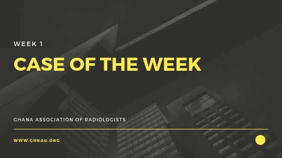 case of the week: seizures and headaches