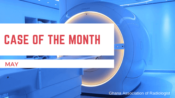 Case of The Month – May