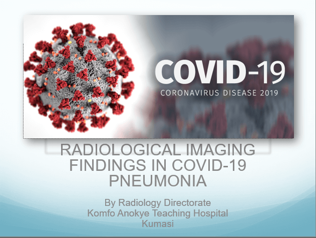 Radiological Imaging Findings In COVID-19 Pneumonia